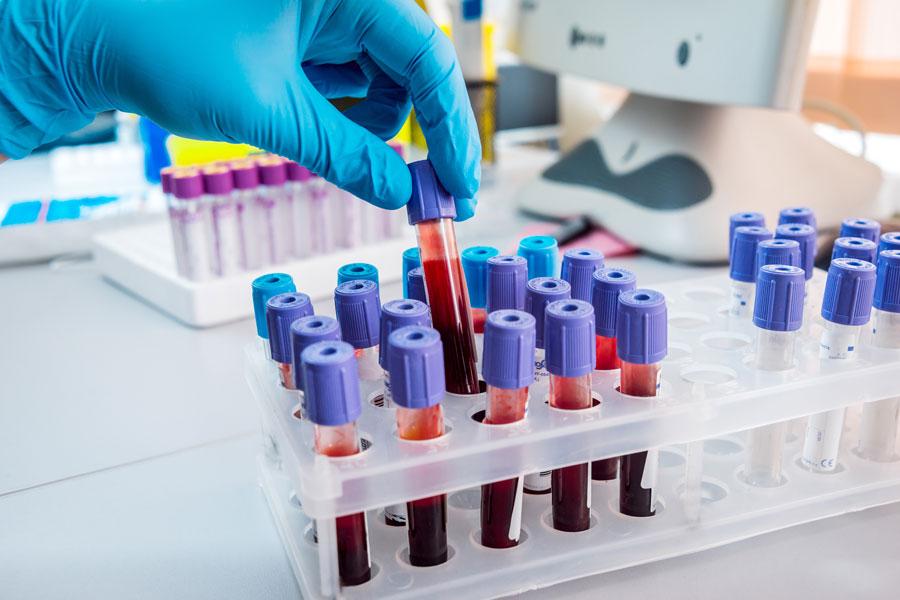 Blood analysis with optical fiber-assemblies