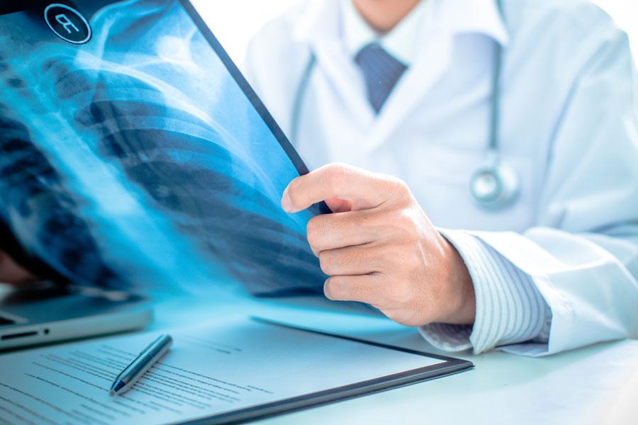 Dosimètre à fibre scintillante pour la radiologie