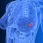 Thumbnail image for SEDI-ATI breast cancer detection application