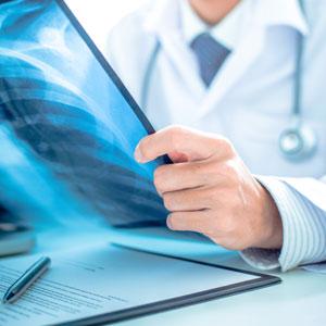Scintillating fiber dosimeter for radiology
